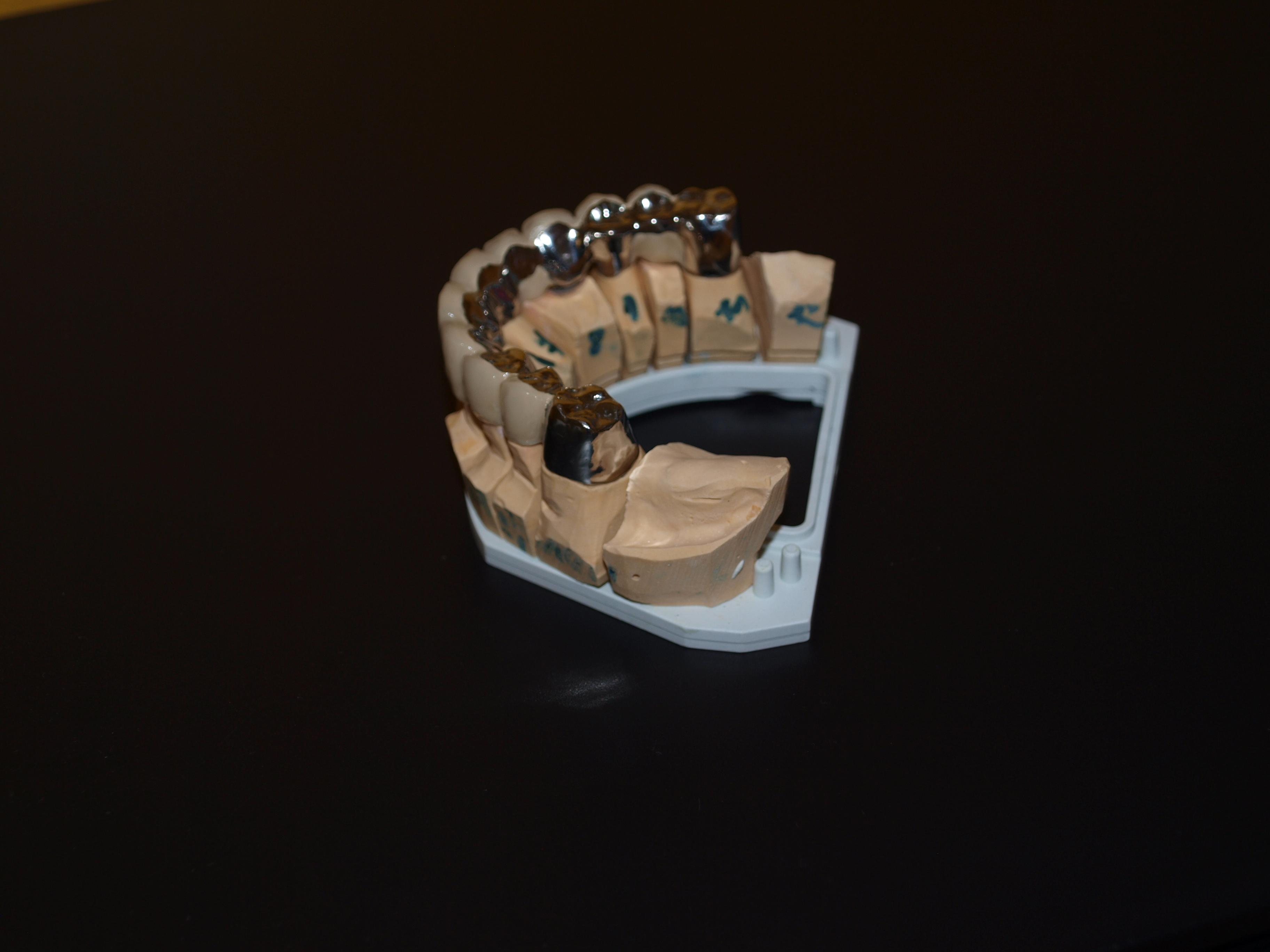 Fasetový můstek - keramické fasety
